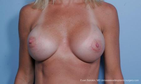 Philadelphia Breast Augmentation 9454 -  After Image 1