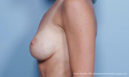 Philadelphia Breast Augmentation 9454 - Before and After Image 5
