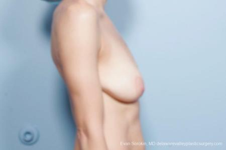 Philadelphia Breast Lift and Augmentation 8694 - Before Image 4