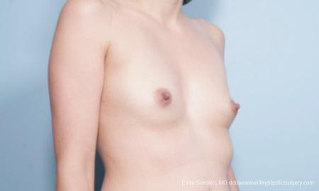 Philadelphia Breast Augmentation 9175 - Before and After Image 2