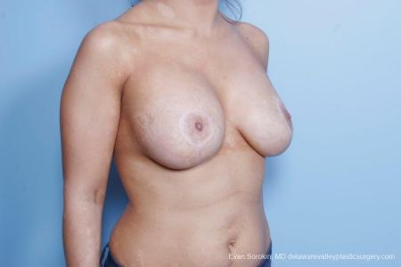 Philadelphia Breast Lift and Augmentation 8688 -  After Image 2