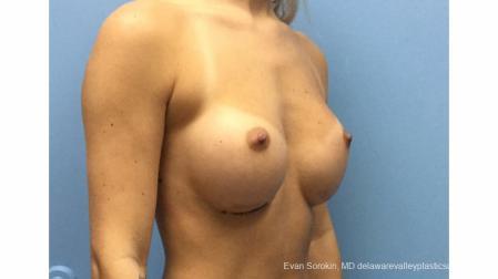 Philadelphia Breast Augmentation 13177 - Before Image 2