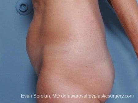 Philadelphia Abdominoplasty 8682 - Before and After Image 5