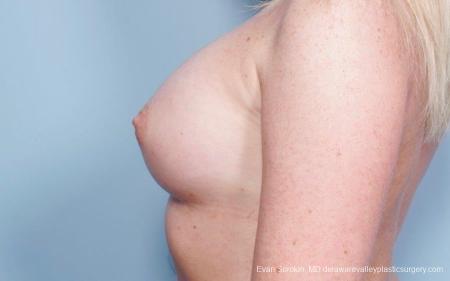 Philadelphia Breast Augmentation 8778 -  After Image 5