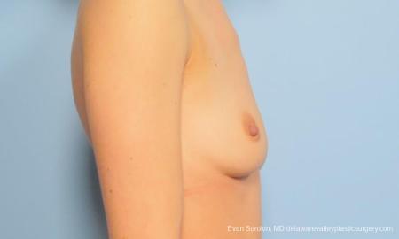Philadelphia Breast Augmentation 9170 - Before Image 3