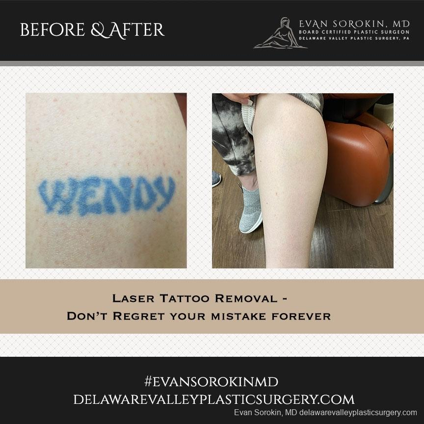 Tattoo Removal: Patient 2 - Before and After Image