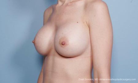 Philadelphia Breast Augmentation 9170 -  After Image 4