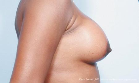 Philadelphia Breast Lift and Augmentation 9427 -  After Image 3