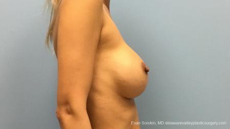 Philadelphia Breast Augmentation 13178 - Before Image 3