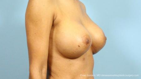 Philadelphia Breast Augmentation 9288 -  After Image 2