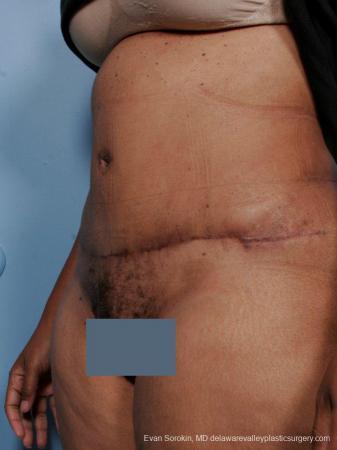 Philadelphia Abdominoplasty 9461 -  After Image 4