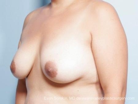 Philadelphia Breast Lift and Augmentation 8677 - Before Image 3