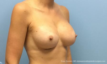 Philadelphia Breast Augmentation 12514 -  After Image 2