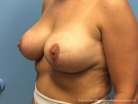 Philadelphia Breast Lift and Augmentation 13070 -  After Image 4