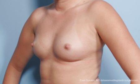 Philadelphia Breast Augmentation 9301 - Before Image 4