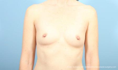 Philadelphia Breast Augmentation 8662 - Before Image 1