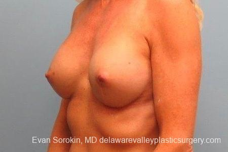 Philadelphia Breast Augmentation 8770 -  After Image 3