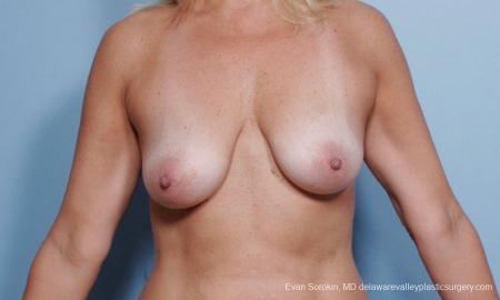 Philadelphia Breast Lift and Augmentation 9375 - Before Image