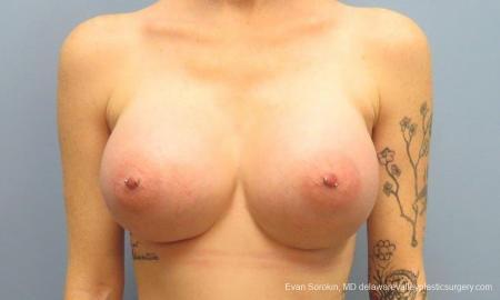 Philadelphia Breast Augmentation 9371 -  After Image 1