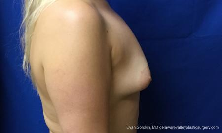 Philadelphia Breast Augmentation 12517 - Before Image 4