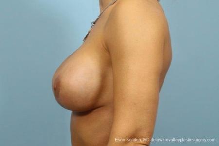 Philadelphia Breast Augmentation 8709 -  After Image 5