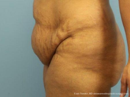Philadelphia Abdominoplasty 9462 - Before and After Image 5