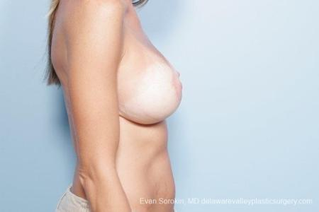 Philadelphia Breast Lift and Augmentation 8694 -  After Image 4