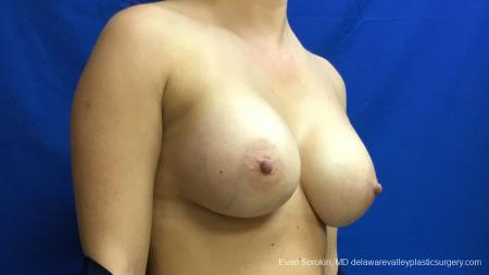 Philadelphia Breast Augmentation 13173 -  After Image 2