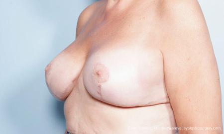 Philadelphia Breast Lift and Augmentation 9431 -  After Image 4