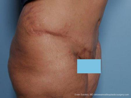 Philadelphia Abdominoplasty 9462 -  After Image 2