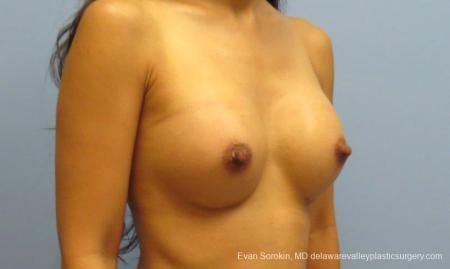 Philadelphia Breast Augmentation 8661 -  After Image 2