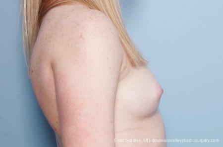 Philadelphia Breast Augmentation 8778 - Before Image 4