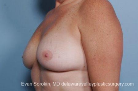 Philadelphia Breast Augmentation 9316 - Before Image 4