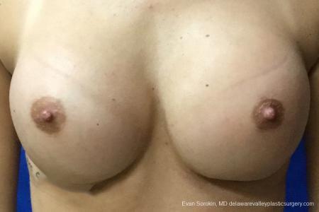 Philadelphia Breast Augmentation 10816 -  After Image 1