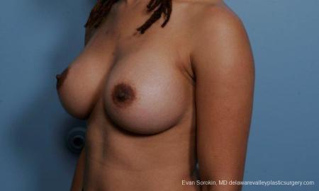 Philadelphia Breast Augmentation 9305 -  After Image 4