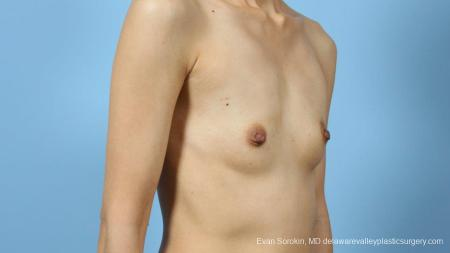 Philadelphia Breast Augmentation 9291 - Before Image 2
