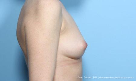 Philadelphia Breast Augmentation 9181 - Before Image 3