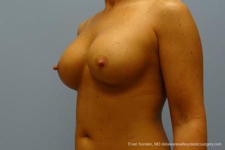 Philadelphia Breast Augmentation 8774 -  After Image 3