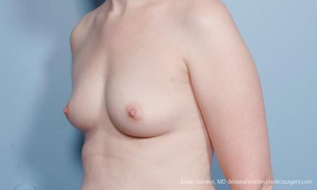 Philadelphia Breast Augmentation 9418 - Before Image 4