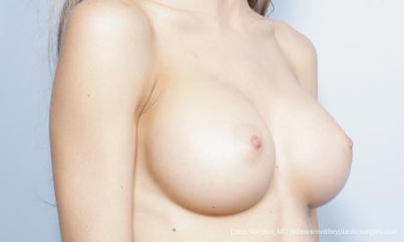 Philadelphia Breast Augmentation 8644 -  After Image 2