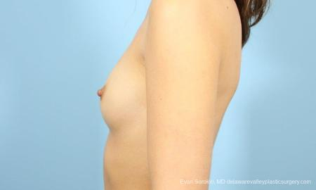 Philadelphia Breast Augmentation 8641 - Before and After Image 5