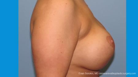 Philadelphia Breast Augmentation 10089 - Before Image 3