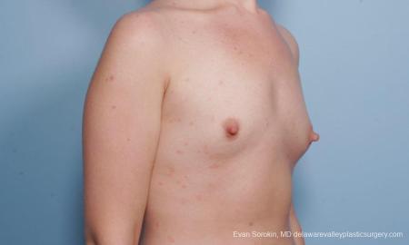 Philadelphia Breast Augmentation 9176 - Before Image 2
