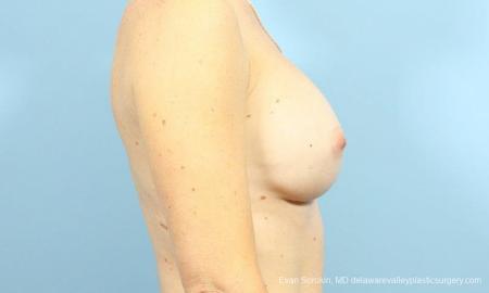 Philadelphia Breast Augmentation 9456 - Before Image 3