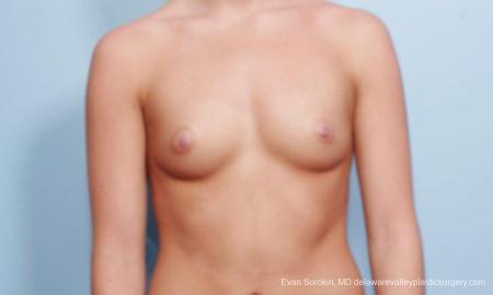 Philadelphia Breast Augmentation 9304 - Before Image 1