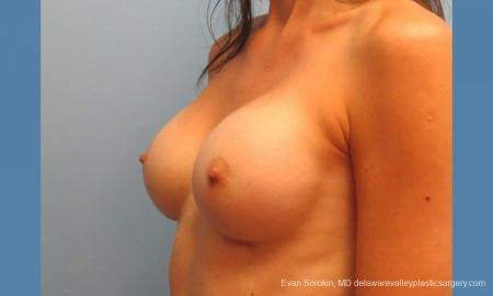Philadelphia Breast Augmentation 9417 -  After Image 4