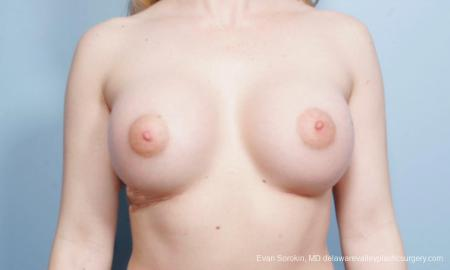 Breast Augmentation: Patient 129 - After Image 1