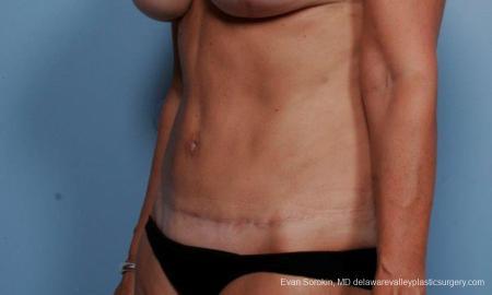 Philadelphia Abdominoplasty 9376 -  After Image 4