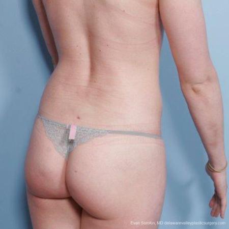 Philadelphia Liposuction 9482 -  After Image 4