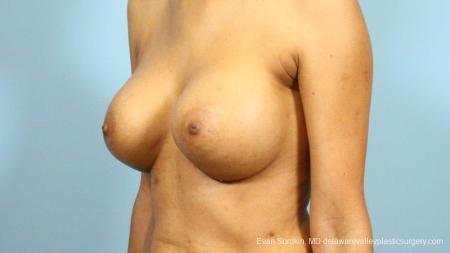 Philadelphia Breast Augmentation 9288 -  After Image 4